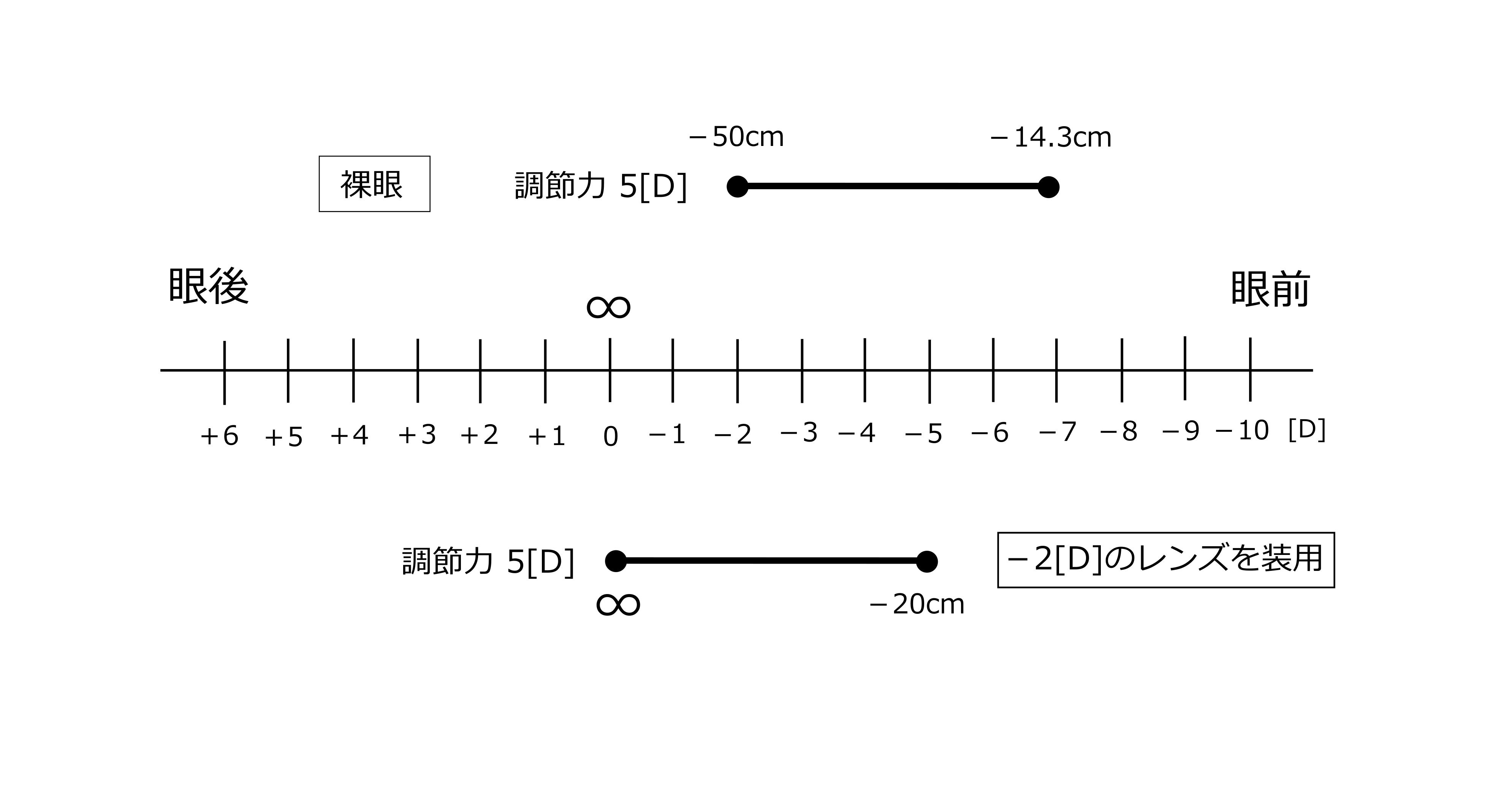 調節力5D